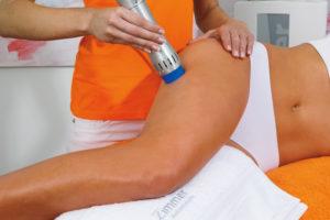 Cellulite Oberschenkel Behandlung mit Stosswellen